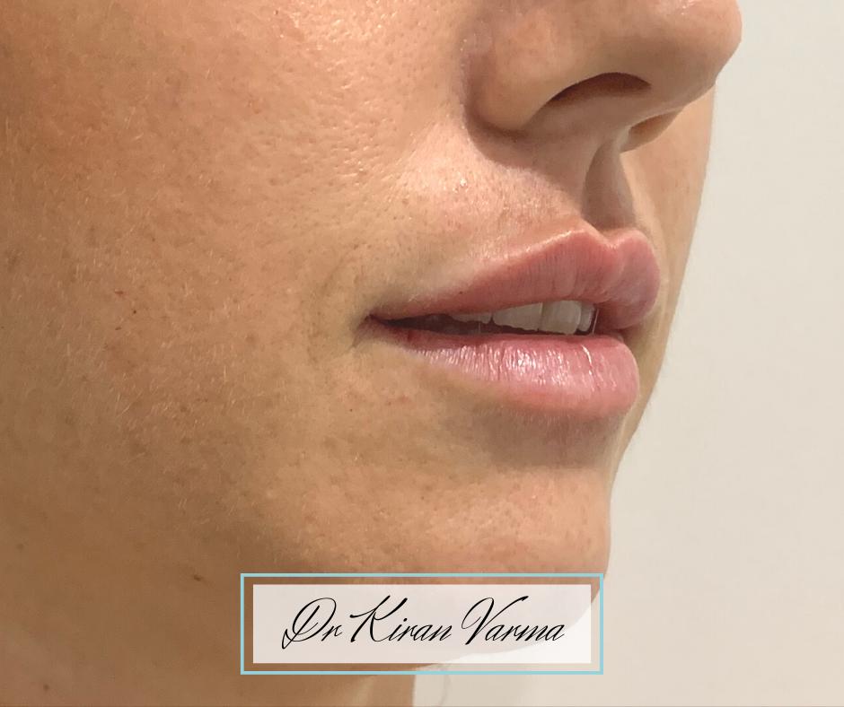 lips side