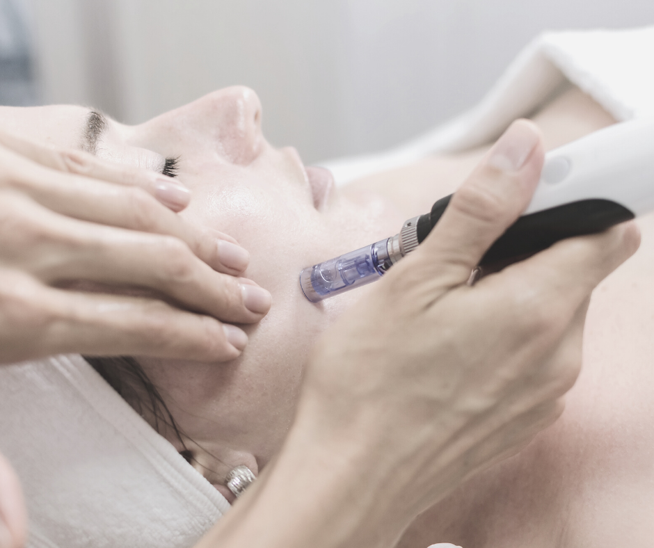 skin needling for large pores