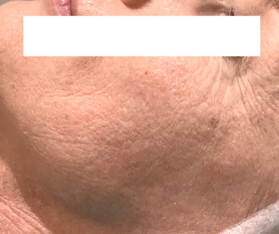 before skin