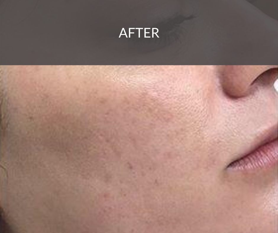 pigmentation peel after